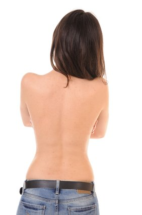 Ways to Get Rid of Back Acne Overnight