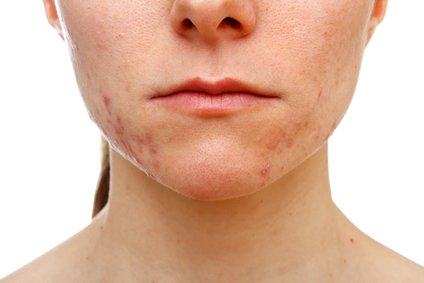 get rid of acne on cheeks fast