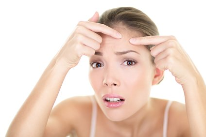 How to clear forehead acne overnight