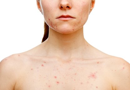 How Do You Get Rid Of Chest Acne And Pimples