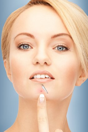 Best Chin Acne Treatments