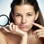 Alpha Hydroxy Acid For Acne Scars