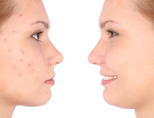 Side Effects Of Over The Counter Acne Products