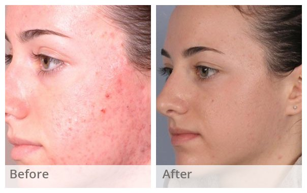 Chemical Peel acne