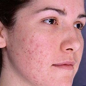Over The Counter Treatment For Acne Scars
