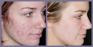 Topical Use Of Retinoid On Acne
