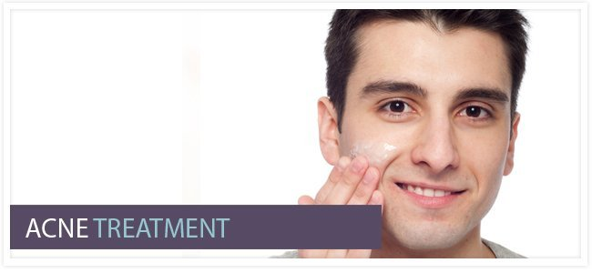 Pimples Treatment For Men