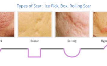 The different types of acne scars (with pictures)