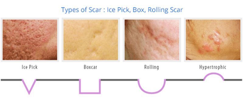 how acne is formed & acne different types, Human Body