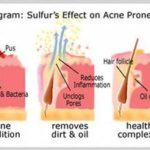Sulfur Acne Treatment Tips And Guide