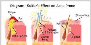 Treating Acne With Sulfur