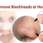 Powerful Blackheads Removing Products
