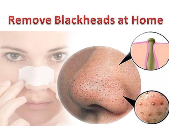 Most Advanced Products To Remove Blackheads At Home