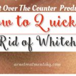 How To Get Rid Of Whiteheads – Top Whiteheads Removing Products