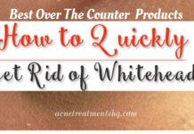 Best Over The Counter Products To Get Rid Of Whiteheads