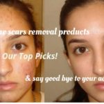 Best Products To Fade Acne Scars – Dermatologists Top Picks For 2018