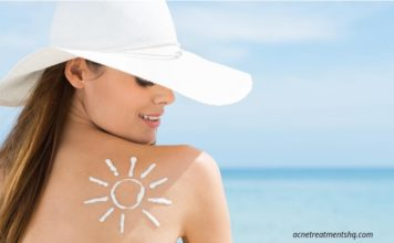 Sun Protection For Acne Prone Skin
