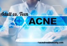 Difference between teen and adult acne