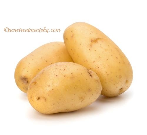 potato for skin acne scars
